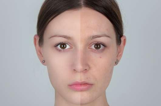 Blemish Balm: Make-up oder was??