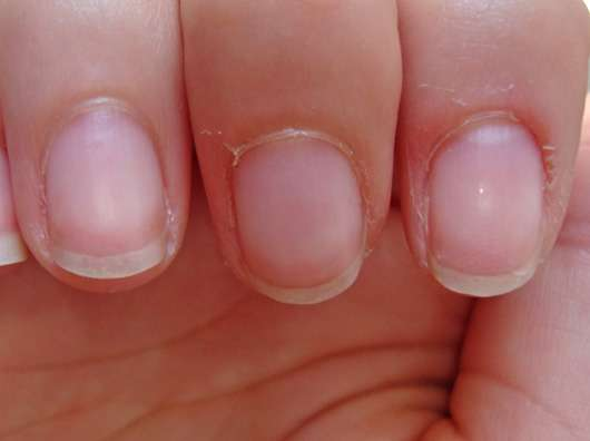Der Finger ohne Nagel wegen gribka
