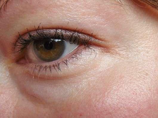 Natural Way To Get Rid Of Purple Around Eyes
