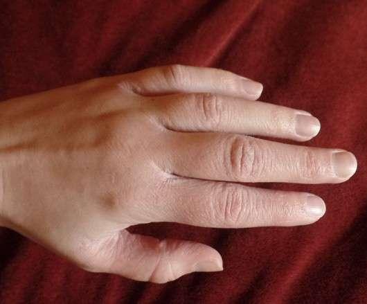 Die Petersilie otbeliwajet die Haut auf der Person