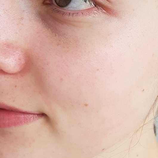 """Gesicht vor Verwendung des Wellness & Beauty Enzympeeling """"lebensfroh ausgeglichen"""""""