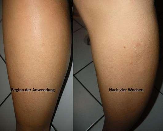 Vorher/nachher Bilder der Haut - Senzera fresh orange fluid
