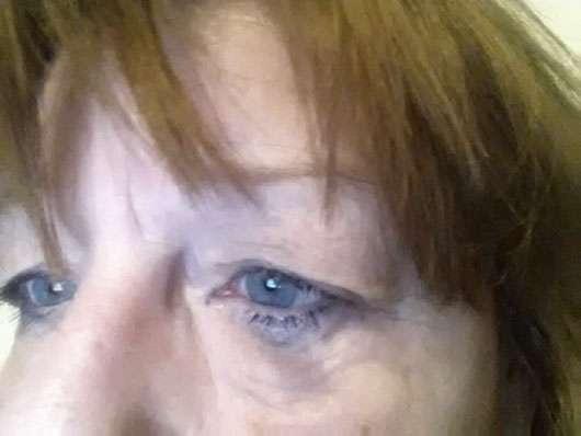 Garnier Skin Naturals Mizellen Reinigungswasser All-in-1 (trockene & empfindliche Haut) - Auge nach der Anwendung