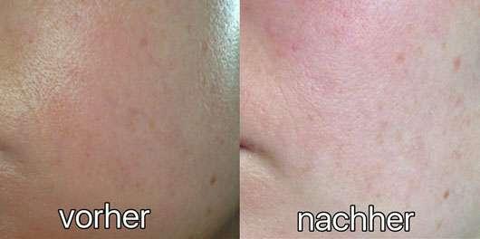 Balea 7 Tage Wellness-Kur - Hautbild vorher und nachher