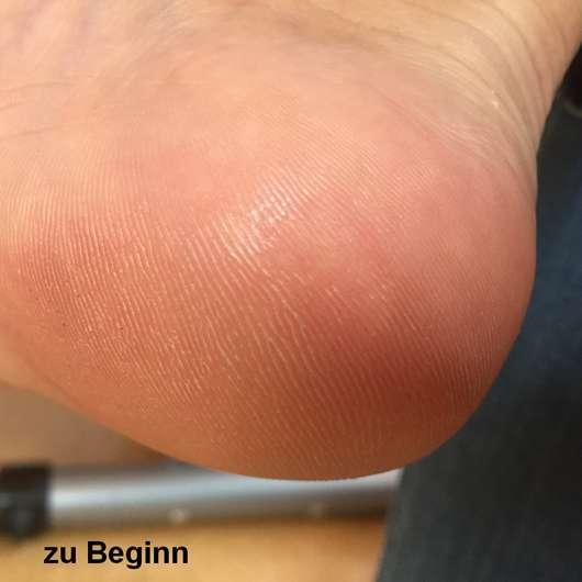 alverde Hornhaut-Reduziercreme Bio-Limette Bio-Echinacea - Fuß vor der Anwendung