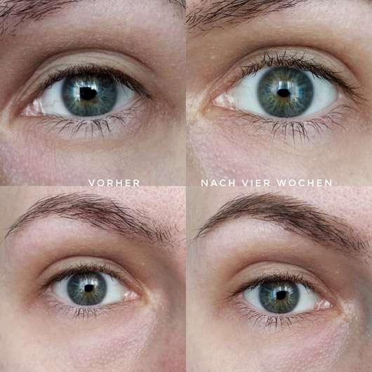 Douglas Age Focus Smoothing Eye Contour Cream - Augenpartie vor und nach der Anwendung