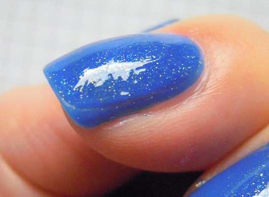 Otslojenije des Nagels vom Finger die Behandlung