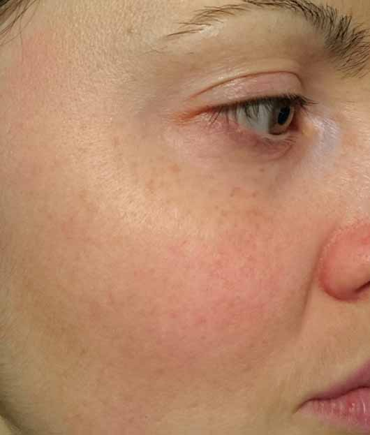 L.O.V PERFECTitude Overnight Mask Metallic Bronze - Hautbild vor der Anwendung