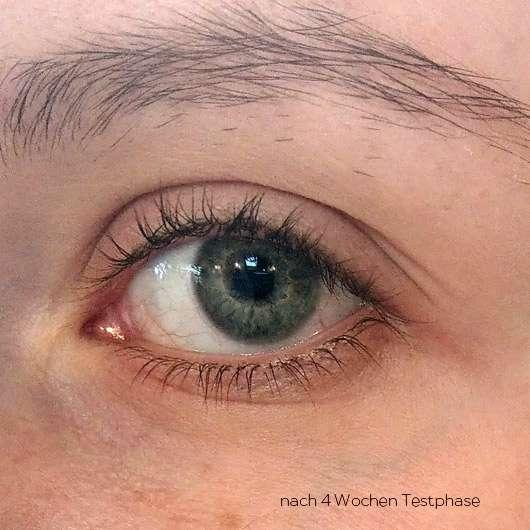 BIO:VÉGANE Bio Cranberry Augenpflege - Hautbild nach der Testphase