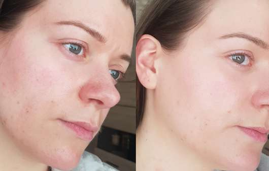 Gesicht ohne/mit Dr. Jart+ Tiger Grass Color Correcting Treatment