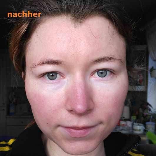 The Beauty Mask Company Strahlkraft Tuchmaske (für müde Haut) - Gesicht nach der Anwendung