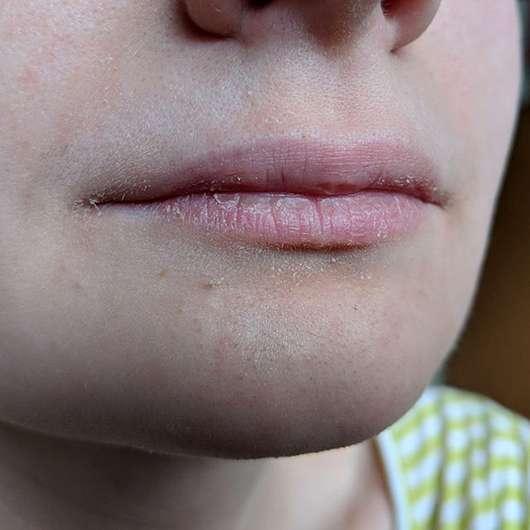 Avène Cold Cream Lippenbalsam im Tiegel - Trockene Lippen vor der Anwendung