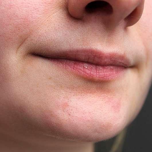 Avène Cold Cream Lippenbalsam im Tiegel - Lippen nach vierwöchiger Anwendung