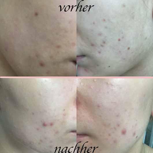 everdry Antibakterieller Gesichts-Reinigungsschaum - Hautbild vorher und nachher