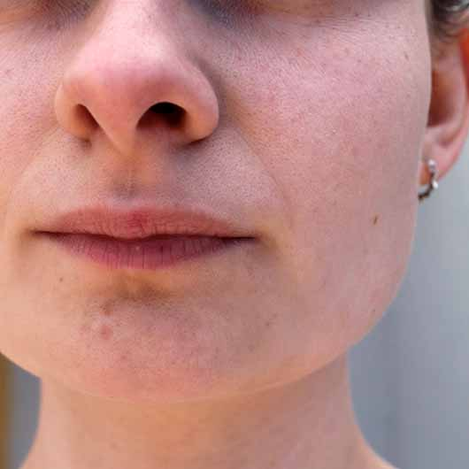 Pixi Rose Tonic - Hautbild vor der Anwendung