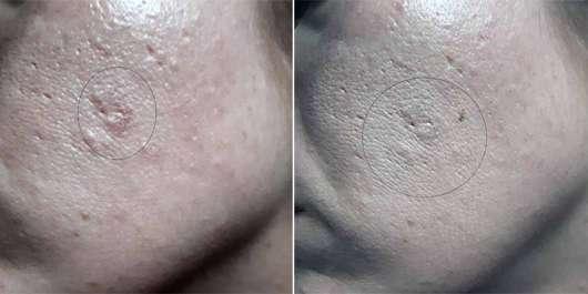 Eucerin DERMOPURE Abdeckstift - Collage Haut ohne und mit Produkt