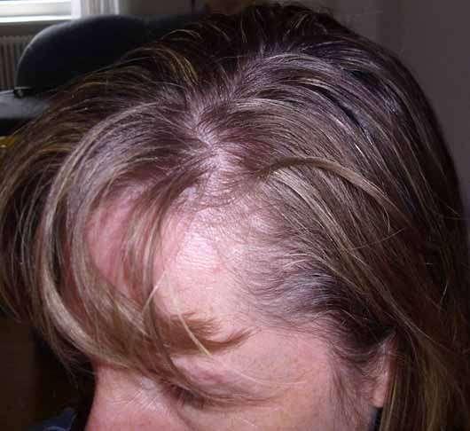 Batiste Blush Dry Shampoo - Haare vor der Anwendung