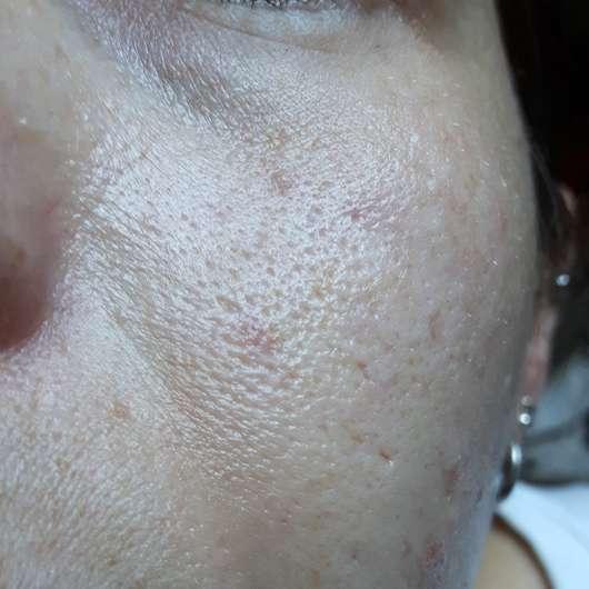 BIO:VÉGANE Bio Acai Serum - Hautbild vor der Anwendung