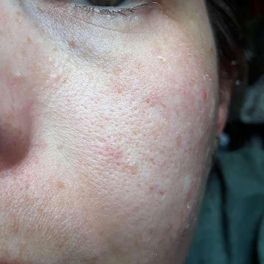 BIO:VÉGANE Bio Acai Serum - Hautbild nach der Anwendung