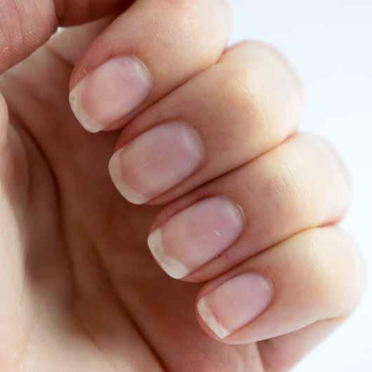 essence hydra nail care serum - Nägel und Nagelhaut zu Testbeginn