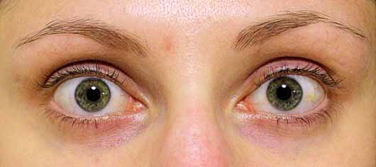 The Glitter Labs Lash And Brow Booster - Nach 4 wöchiger Testphase