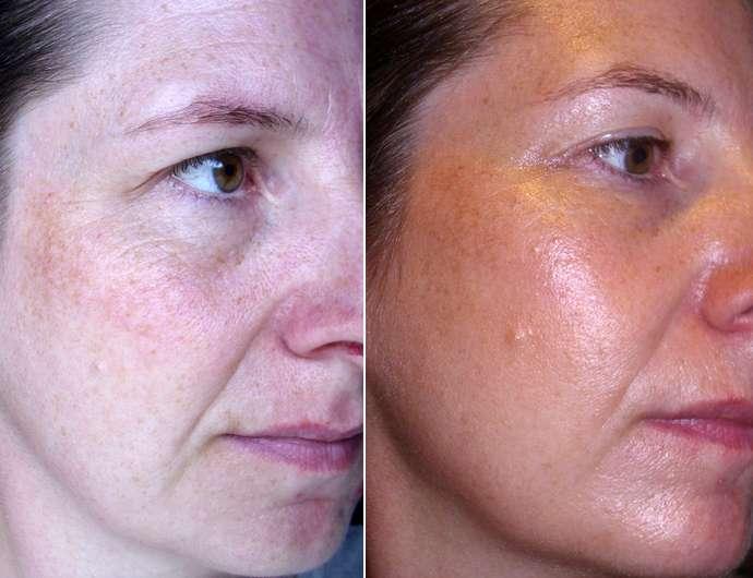 Misslyn Shaping Queen Highlight & Contour Stick, Farbe: 2 Light - Gesicht vor (li.) und nach (re.) der Anwendung