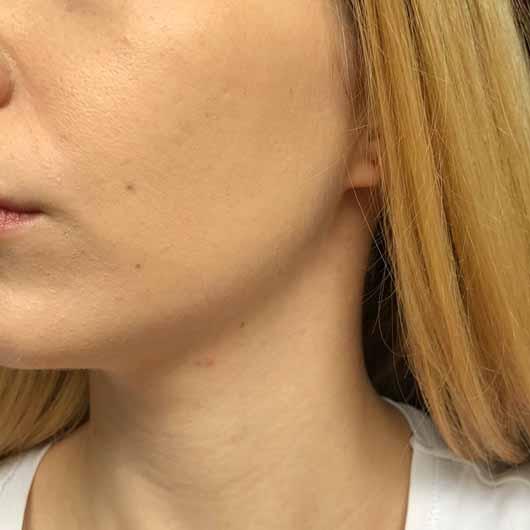 ARTDECO 3in1 Make-up Fixing Spray - Meine Foundation am Abend. Das Ergebnis kann sich immernoch sehen lassen. Lediglich an den Innenseiten der Nasenwinkel ist die Foundation etwas schmierig geworden.