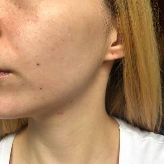 ARTDECO 3in1 Make-up Fixing Spray - Meine Haut, nachdem ich das Spray als Primer aufgesprüht habe. Die Haut glänzt etwas, ist aber nicht gereizt und brennt nicht.