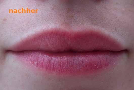 essence wanted: sunset dreamers lip peeling, Farbe: 01 desert crush (LE) - Lippen nach der Anwendung