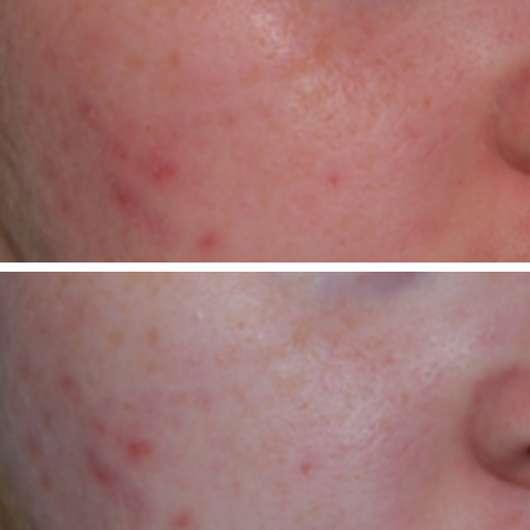 Comodynes Hydrating Jelly Mask mit Aloe Vera + Hafer - Hautbild vor der Anwendung (oben) und nach 4 Wochen Testphase (unten)