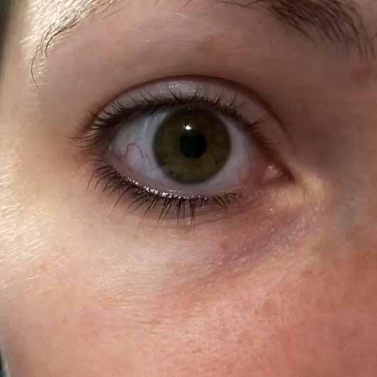 L'ORÉAL PARiS Revitalift Laser X3 Anti-Age Pflege Augen - Auge vor der Anwendung