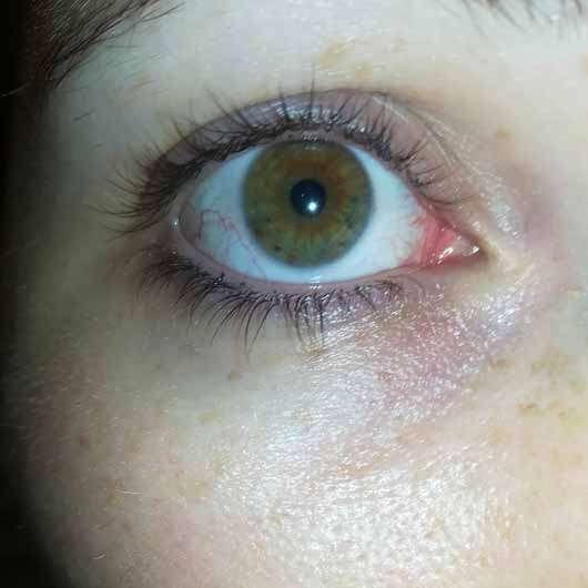 L'ORÉAL PARiS Revitalift Laser X3 Anti-Age Pflege Augen - Auge nach der Testzeit