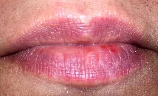 Pixi Shea Butter Lip Balm, Farbe: Scarlet Sorbet - Lippen ohne Produkt