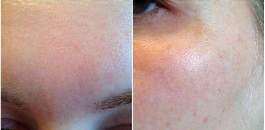 The Body Shop Roots of Strength Straffendes Serum - Haut vor Testbeginn