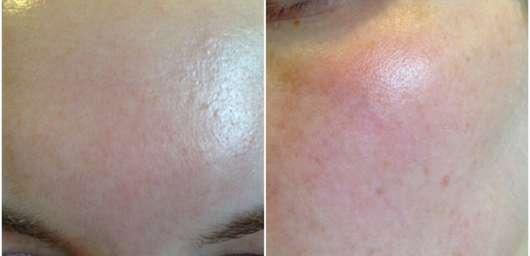 The Body Shop Roots of Strength Straffendes Serum - Haut nach 4 Wochen Test