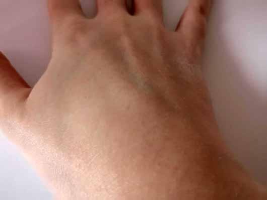 Allpremed atopix Lipid Schaum-Creme BASIS SENSITIVE - Haut nach dem Einreiben