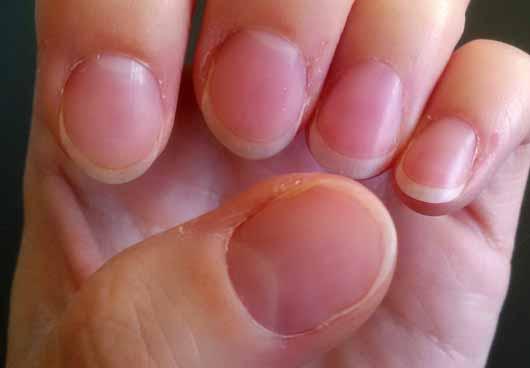 ARTDECO Natural Repair Cream - Nägel vor der Anwendung