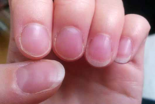 ARTDECO Natural Repair Cream - Nägel nach der Testphase