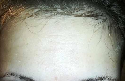 Colibri Cosmetics Hyaluron Konzentrat - Hautbild vorher