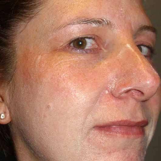 Kiehl's Rare Earth Deep Pore Daily Cleanser - Reiniger im Gesicht