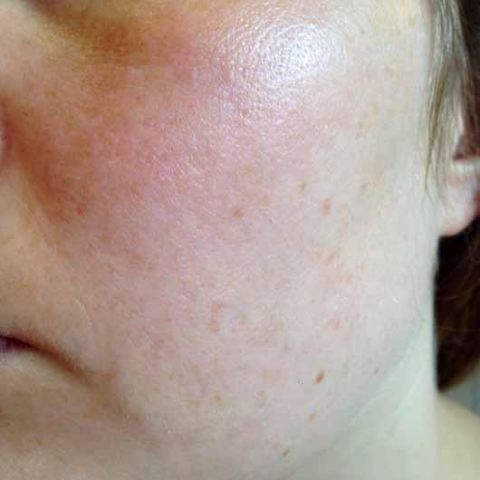 IT Cosmetics Your Skin But Better CC+ Cream mit LSF 50+, Farbe: Medium - Hautbild nach dem Test