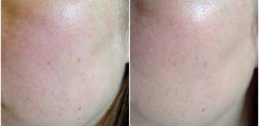 IT Cosmetics Your Skin But Better CC+ Cream mit LSF 50+, Farbe: Medium - links ohne und rechts mit Produkt