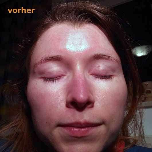 Mlle Agathe Regenerierende Nachtpflege - Hautbild vorher