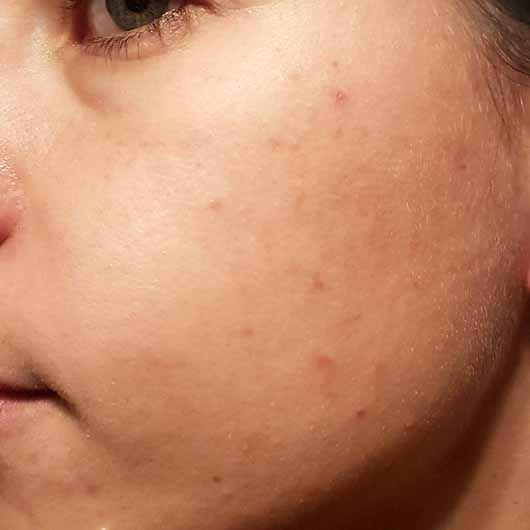 The Body Shop Tea Tree Skin Clearing Facial Wash - Hautbild vor dem Test