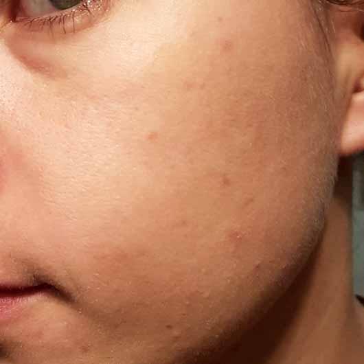 The Body Shop Tea Tree Skin Clearing Facial Wash - Hautbild nach dem Test