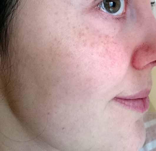 too cool for school EGG Mellow Cream 5-in-1 Firming Moisturizer - Hautbild nach 5 Wochen Anwendung