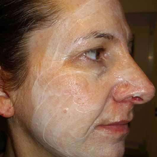 Schaebens Hyaluron Maske Hydro Boost - Konsistenz im Gesicht