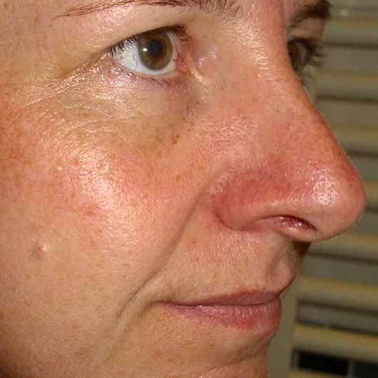 Schaebens Hyaluron Maske Hydro Boost - Haut vor der Anwendung