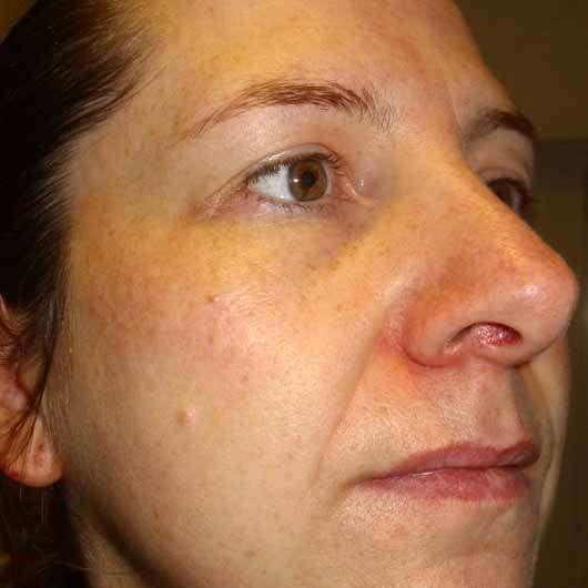 Schaebens Hyaluron Maske Hydro Boost - Haut nach der Anwendung