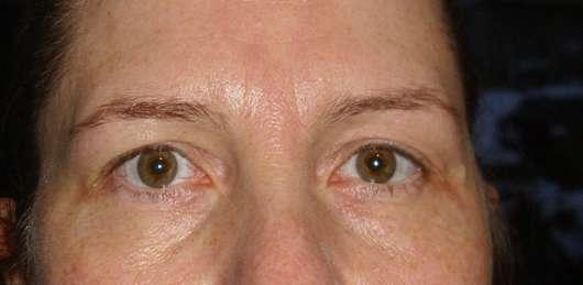 Yves Rocher Hydra Végétal Ultra-Erfrischendes Reinigungsgel - Augenpartie nach der Reinigung